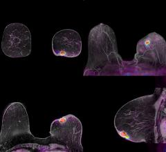 PET Scans Show Biomarkers Could Spare Some Breast Cancer Patients from Chemotherapy