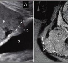 A) Ultrasound in 28-year-old woman (B) MRI in 34-year-old woman with suspected PAS disorder. Focal area of placental tissues bulge toward imaginary lines of normal uterine contour (dash lines). Length (L) and depth (D) measurements of placental bulge also demonstrated. p = placenta; b = bladder. Image courtesy of American Roentgen Ray Society (ARRS), American Journal of Roentgenology (AJR)