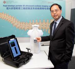 Hong Kong Polytechnic University Develops Palm-sized 3-D Scoliosis Ultrasound Imaging System