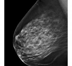#SBI #NCoBC Studies presented at two leading breast imaging conferences demonstrate ProFound AI helps radiologists identify normal mammograms and those with increased likelihood of malignancy with precision
