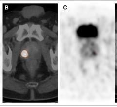 PSMA PET-CT Clearly Differentiates Prostate Cancer from Benign Tissue