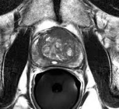 Researchers reviewed results of prostate biopsies on over 3,400 men who had targets identified on prostate MRI andfound that the positive predictive value of the test for prostate cancer was highly variable at different sites