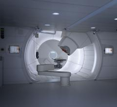 Anew clinical guidelinefrom the American Society for Radiation Oncology (ASTRO) provides recommendations for radiation therapy to treat patients with nonmetastatic cervical cancer.