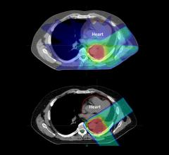 Treating lung cancer patients with proton therapy may help reduce the risk of radiation-induced heart diseases, suggests a new study from Penn Medicine. In a retrospective trial of more than 200 patients, mini-strokes were significantly less common among patients who underwent proton therapy versus conventional photon-based radiation therapy. Proton therapy patients also experienced fewer heart attacks.