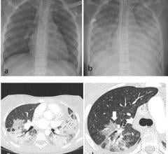 Thoracic findings in a 15-year-old girl with Multisystem Inflammatory Syndrome in Children (MIS-C). (a) Chest radiograph on admission shows mild perihilar bronchial wall cuffing. (b) Chest radiograph on the third day of admission demonstrates extensive airspace opacification with a mid and lower zone predominance. (c, d) Contrast-enhanced axial CT chest of the thorax at day 3 shows areas of ground-glass opacification (GGO) and dense airspace consolidation with air bronchograms. (c) This conformed to a mosai