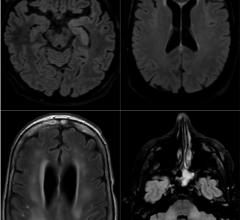 Axial FLAIR in four different COVID-19 patients. A) 58-year old man with impaired consciousness: FLAIR hyperintensities located in the left medial temporal lobe. B) 66-year old man with impaired consciousness: FLAIR ovoid hyperintense lesion located in the central part of the splenium of the corpus callosum. C) 71-year old woman with pathological wakefulness after sedation: extensive and confluent supratentorial white matter FLAIR hyperintensities (arrows). Association with leptomeningeal enhancement (stars