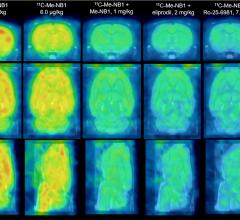 Novel PET Agent Could Help Guide Therapy for Brain Diseases