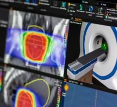 MD Anderson and RaySearch Partner to Advance Adaptive Radiation Therapy