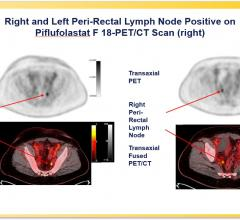 A phase III clinical trial has validated the effectiveness of the prostate-specific membrane antigen (PSMA)-targeted radiotracer18F-DCFPyL in detecting and localizing recurrent prostate cancer.