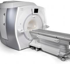GE Signa PET/MR Improves Image Quality With Time-of-Flight Capability