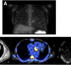 SPECT/CT Imaging Agent Solves Difficulty of Diagnosing Infectious Endocarditis