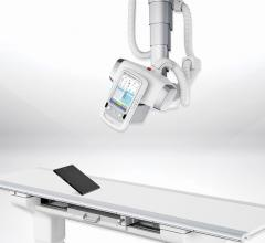 Samsung Adds S-Vue 3.02 Imaging Engine to GC85A Digital X-ray for Lower Dose