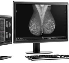 rsna 2013 women's healthcare mammography reporting breast imaging three palm