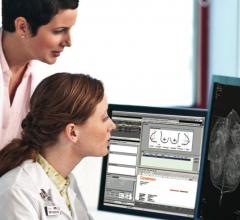 women's health rsna 2013 vue pacs carestream digital breast tomosynthesis dbt