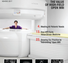 Hitachi Healthcare Highlights Benefits of High-Field Open MRI in New Supplement
