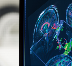 An image on Brigham and Women's Hospital's 7T MRI system