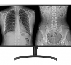 LG's new 8-megapixel radiology monitor (model 32HL512D – FDA 510k Class II approval is pending) has a larger screen than its 27-inch predecessor and employs LG NanoCell IPS display technology for image quality optimized for accurate reviews