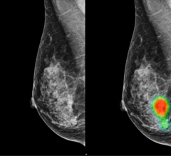 Mammograms of a 49-year-old woman with invasive lobular carcinoma on the right-side breast
