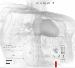 The agreement is intended to integrate Qure.ai's proprietary technology for chest x-ray screening and head CT triage in the Nanox.Cloud to improve imaging solutions and increase patient access to medical imaging world-wide