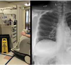Chest radiography through glass. A, Technologists position the portable x-ray unit outside the patient room, with the tube peering through the mesh wire–reinforced isolation room window. B, Anteroposterior chest radiograph obtained is of diagnostic quality.