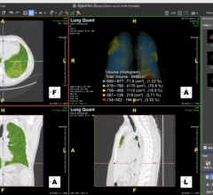 These solutions, the Lung Density Analysis II (LDA-II) workflow for Intuition and the Emergency Lung AI Suite, provide two deployment options for rapid access to lung segmentation and quantification tools that can be applied to a wide range of lung illnesses and have been optimized to adapt to the latest disease presentation states