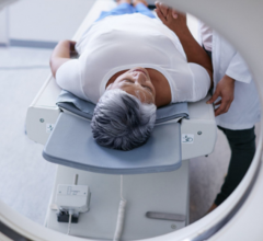 A patient implanted with theAxonics Systemcan undergo MRI examinations safely with radio frequency (RF) Transmit Body or Head Coil under the conditions outlined in the Axonics MRI Conditional Guidelines.