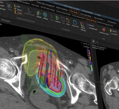 RaySearch Laboratories AB has launched the latest release of its widely adopted treatment planning system. RayStation 10B adds support for brachytherapy planning and a new GPU Monte Carlo algorithm, which typically cuts final dose computation times to less than five seconds.