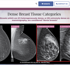 DB-I website features new educational tools and streamlined user experience to improve access to medically sourced breast density content
