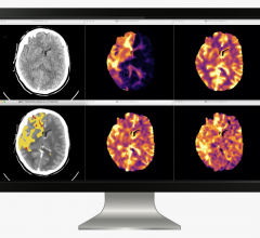 icobrain cva allows the quantitative assessment of tissue perfusion by reporting the volume of core and perfusion lesion by quantifying Tmax abnormality and CBF abnormality together with the mismatch volume and ratio