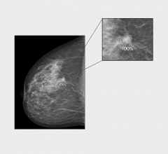 iCAD, Inc. announced that ProFound AI for 2D Mammography might notably reduce the risk of interval breast cancer, according to a retrospective analysis recently published in the Journal of Medical Screening.