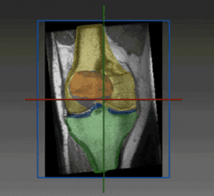 The software provides fully automated precise segmentation and robust assessment of chondral lesions (location, diameter, shape, boundaries), resulting in improved diagnosis and treatment selection, supporting faster recovery