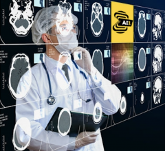 Nanox enters into acquisition via merger agreement with Zebra Medical Vision Ltd. and announces entry into binding letter of intent with USARAD Holdings Inc. with the goal of creating an integrated, globally connected end-to-end radiology solution and population preventive health platform
