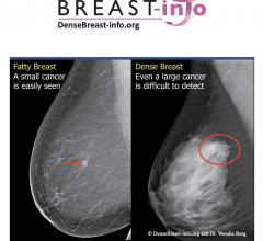 DenseBreast-info.org (DB-I) announced that the European Society of Radiology(ESR) now links to DB-I website and educational materials as a resource for members about the screening and risk implications of dense breast tissue.