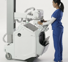 First-of-its-kind, power-assisted Free Motion telescoping column reduces lift force by up to 70 percent to significantly reduce musculoskeletal stress and strain injuries that may occur over the course of an X-ray technologist's career