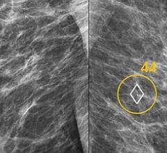 Transpara Deep Learning Software Matches Experienced Radiologists in Mammogram Reading