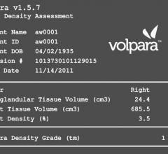Matakina Internation Volpara Imaging Software 1.5.7 RSNA 2012