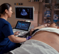 The Acuson Sequoia with Deep Abdominal Transducer (DAX) scanning a 600 pound patient.