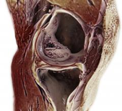 Siemens Healthineers Introduces GOKnee3D MR Application