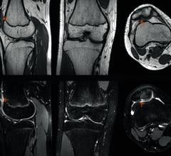 FDA Clears Siemens Healthineers' GOKnee3D MRI Application