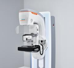 Siemens Healthineers Announces FDA Clearance of Mammomat Revelation Mammography System