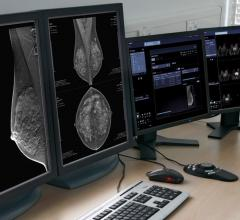 Siemens Healthineers Syngo.Breast Care Adding AI-Based Decision Support