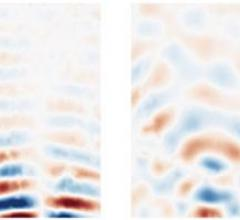 Maps of stiffness (storage modulus) in uniform-concentration sample (left) and sample with harder inclusion (right) (sample: polyacrylamide gel). It can be seen that harder inclusion is clearly visible in spite that its concentration is only slightly different from the surrounding matrix. Note that such a slight difference cannot be discerned by typical X-ray radiography for medical diagnostics.