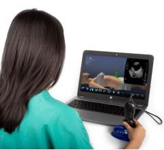 GE Healthcare Expands Collaboration With SonoSim for Ultrasound Education