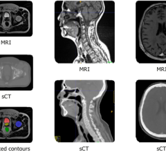 To help enhance the images and information provided to clinicians for radiation oncology treatment planning, GE Healthcare will integrate Spectronic Medical's AI-based software with its industry leading AIR Recon DL technology