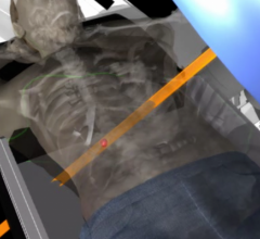 stereotactic body radiation therapy (SBRT)