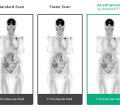Subtle Medical Showcases Artificial Intelligence for PET, MRI Scans at RSNA 2018