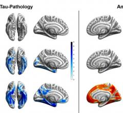Tau (blue) and amyloid (orange) distribution patterns for super-agers, normal-agers and MCI patients, when compared to a group of younger, healthy, cognitively normal, amyloid-negative individuals. Brain projections are depicted at an uncorrected significance level of p < .0001. Color bars represent the respective t-statistic. Image courtesy of Merle C. Hoenig, Institute for Neuroscience and Medicine II - Molecular Organization of the Brain, Research Center Juelich, Juelich, Germany, and Department of Nucle