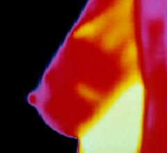 FDA Cracks Down on Thermography