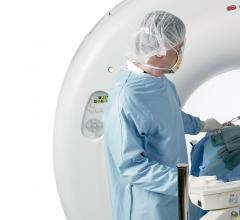 Toshiba Medical Demonstrates Radiation Therapy Planning Enhancements for Aquilion LB CT at ASTRO