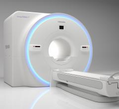 Toshiba Medical Launches Galan RT Solutions for MRI Radiation Therapy Planning